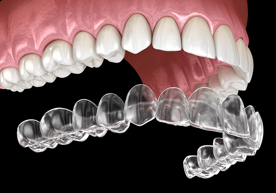 invisalign-treatment